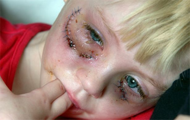 Little girl with scar